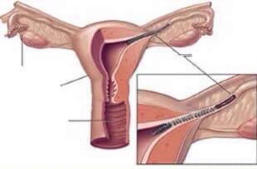 Mulheres afetadas pelo Essure, método contraceptivo da Bayer, se unem em busca de indenizações